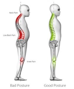 Sabe avaliar a sua postura? Qual a postura correta?